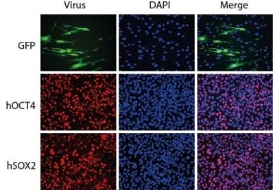 人诱导多功能干细胞形成试剂盒