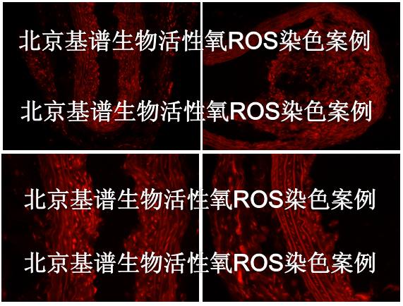 冰冻切片活性氧ROS染色服务