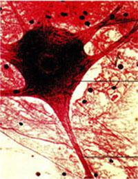 α-银环蛇神经毒素 来源:银环蛇(Bungarus multicinctus