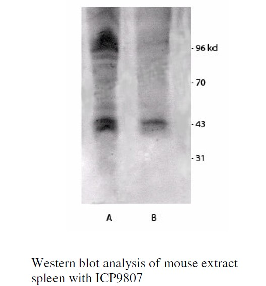 Phos-tag Acrylamide 用于磷酸化和非磷酸化蛋白的分离
