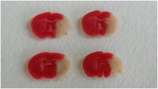 昆明小鼠 MCAO模型缺血侧脑组织