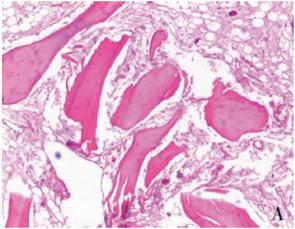 骨组织脱钙(普通、小鼠、大鼠)