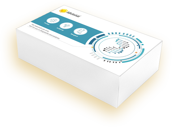 ABScript II cDNA First-Strand Synthesis Kit