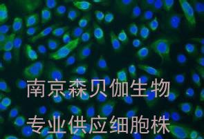 人肝癌,QGY-7703