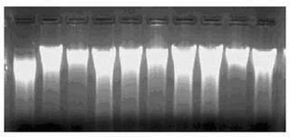 土壤DNA提取试剂盒