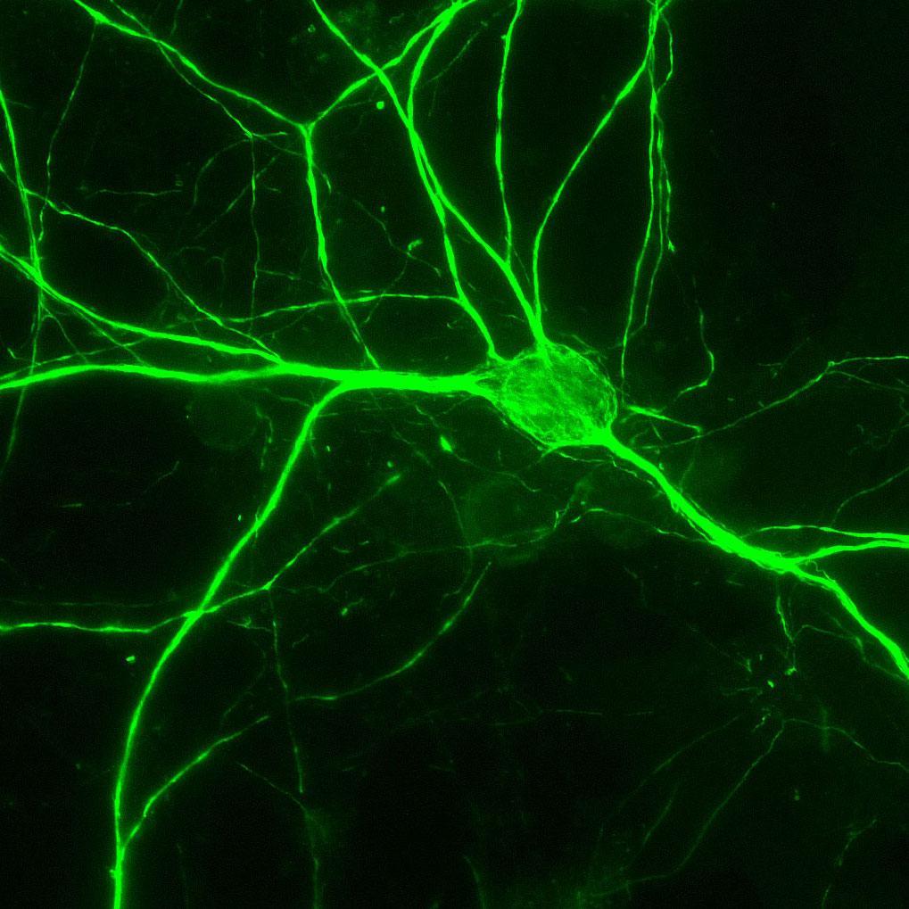 Aves Labs/Anti-NFH (Neurofilament Heavy Chain) Antibody (NFH)/NFH