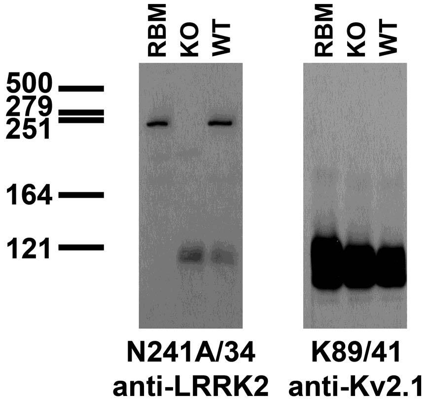 Aves Labs/Dardarin/LRRK2, C-terminus (7x-253)/Purified (75-253)