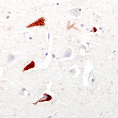 Aves Labs/Anti-Tau Antibody (TAU)/TAU