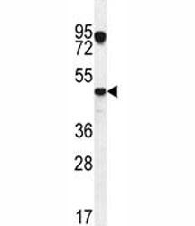 NSJ/VEGFC Antibody (F41806)/ F41806-0.4ML/ 0.4 ml