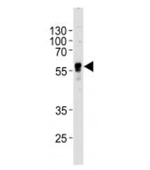 NSJ/ABHD3 Antibody (F43291)/ F43291-0.4ML/ 0.4 ml