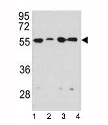 NSJ/Vimentin Antibody (F52051)/ F52051-0.4ML/ 0.4 ml