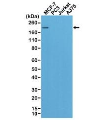 NSJ/Recombinant HER2 Antibody [clone RM228] (R20258)/R20258-1ML/ 1 ml