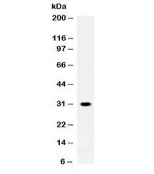 NSJ/ZWINT Antibody (R32455)/ R32455/ 100 ug