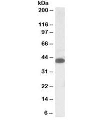 NSJ/A4GNT Antibody (R35144)/ R35144-100UG/ 100 ug