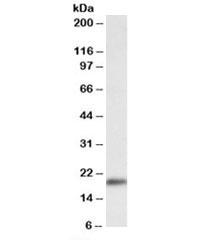 NSJ/Wfdc1 Antibody (R35738)/ R35738-100UG/ 100 ug