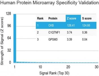 NSJ/Creatine kinase B type Antibody [clone 2ba6] (V3497)/V3497SAF-100UG/ 100 ug