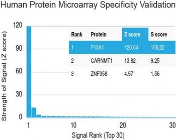 NSJ/Factor XIIIa Antibody [clone F13A1/1448] (V3499)/V3499SAF-100UG/ 100 ug
