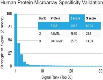 NSJ/Factor XIIIa Antibody [clone F13A1/1683] (V3500)/V3500SAF-100UG/ 100 ug