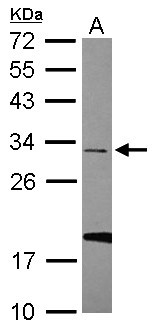 ZipRuler  Express DNA Ladder Set, ready-to-use