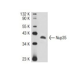 TwistDX MILENIA02  special order only -milenia Hybridtech 2 stirps(no nfo kits) 侧向流检测试纸(任何PCR和恒温扩增的扩