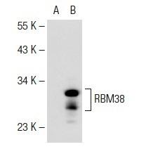 Anti-MSL3L2抗体