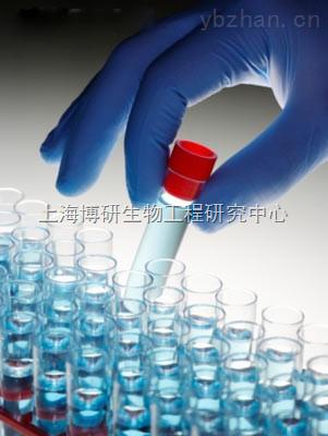 Anti-C6orf132抗体