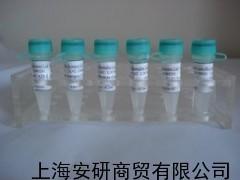 Anti-ZC3H7B抗体