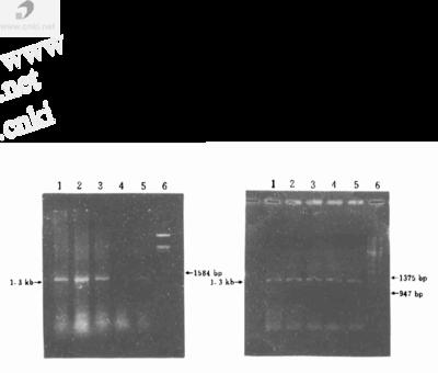 细菌基因敲除系统pKD4