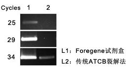 实时荧光定量PCR试剂盒