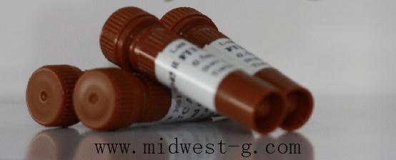 Anti-LIPM/Lipase M抗体