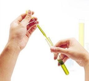 肺炎链球菌抗原检测试剂(胶体金法)