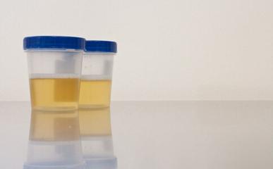 肺炎链球菌尿液抗原检测试剂