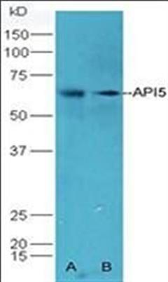 腺苷脱氨酶(ADA)检测试剂盒(比色法)