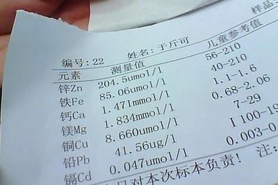 土壤碱性磷酸酶测定试剂盒 微量法