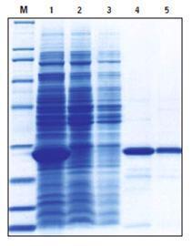 标签蛋白纯化