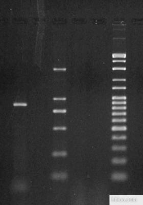 β-actin基因内源性对照试剂盒