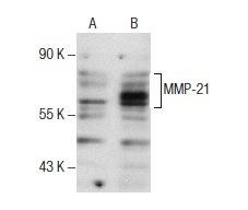p53 抗体