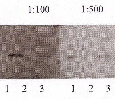 二碘甲腺原氨酸 (T2)抗原