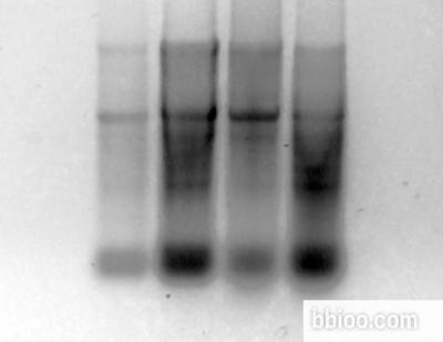 牛胰岛素;I5500;11070-73-8