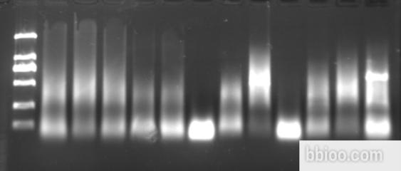 S-Carboxypropyl-L- Cysteine-(R)-Sulfoxide标准品对照品