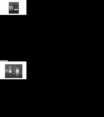 FAM163A; C1orf76; MGC16664; NDSP; RP11-12M5.2