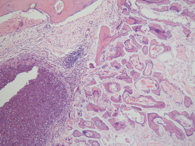 [胰腺癌,60点]HPanA060CS03