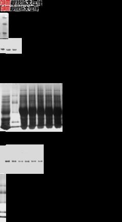 Anti-NCR1抗体
