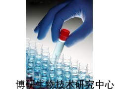 Anti-KCT2抗体