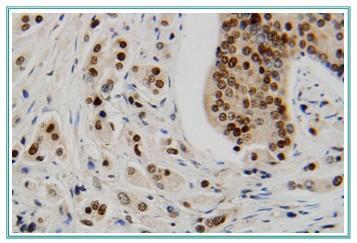 鸡抗凝血酶Ⅲ抗体ELISA检测试剂盒,鸡(AT-Ⅲ)ELISAkit
