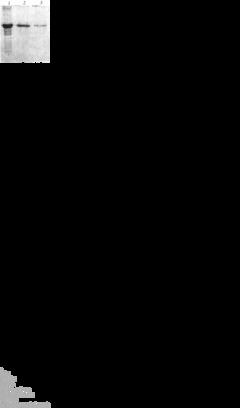 过氧化氢酶Catalase