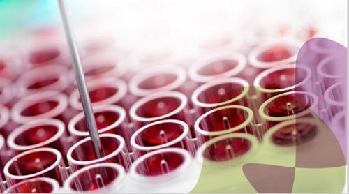 心脏型脂肪酸结合蛋白(H-FABP)检测试剂盒(免疫层析法)