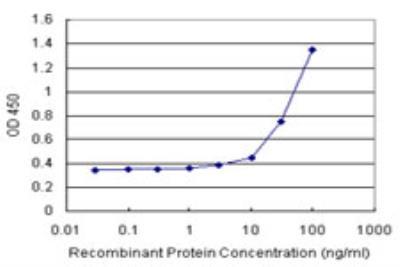 Novus/CBS Antibody Pair (H00000875-AP11)/H00000875-AP11/1 Set