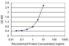 Novus/Serpin A3/alpha 1-Antichymotrypsin Antibody Pair (H00000012-AP21)/H00000012-AP21/1 Set