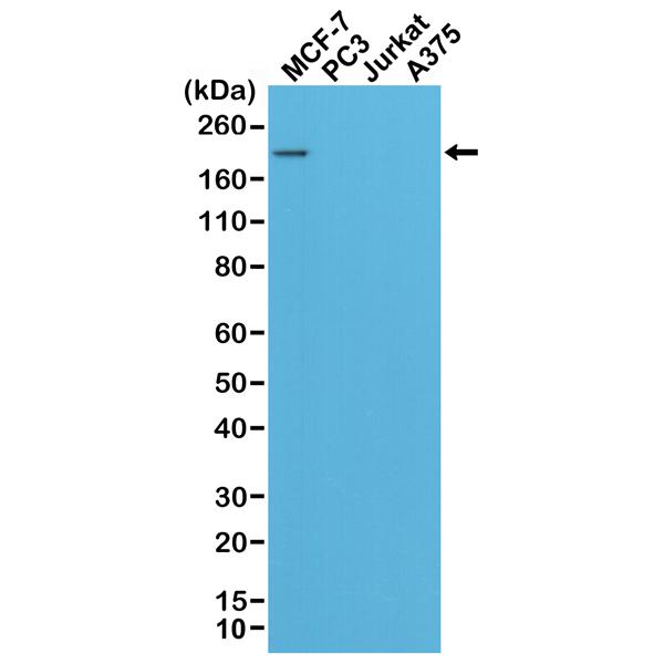 Revmab/Anti-HER2 (c-erbB-2) Rabbit Monoclonal Antibody, Clone RM228/31-1107-00-S/0.1.ml